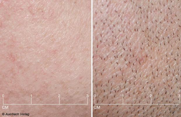 Links: Der Panasonic ES-RT31 hinterlässt ein glattes Hautbild<br>Rechts: Deutliche Stoppelreste dagegen nach der Rasur mit dem Modell von Grundig