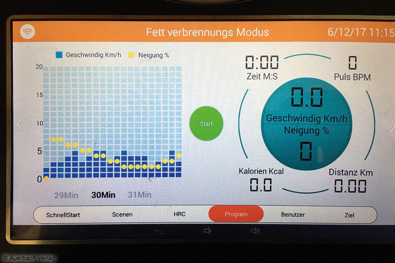Die Auswahl der Programme beim Pacemaker erfolgt einfach via Touchbildschirm, hier können jede Menge Einstellungen vorgenommen werden